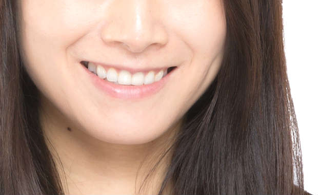 teeth2211