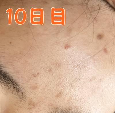 トリア10日目ニキビ美顔器